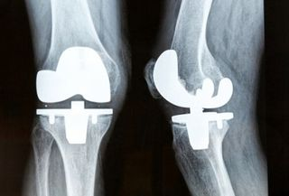 India-computer-knee-replacement[1]