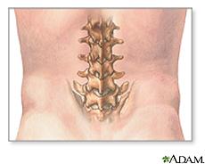 Lumbarvertebrae